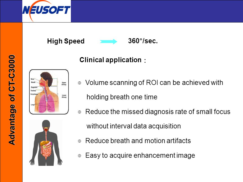 Advantage of CT-C3000 High Speed 360°/sec. Clinical application: