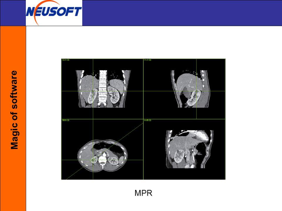 Magic of software MPR
