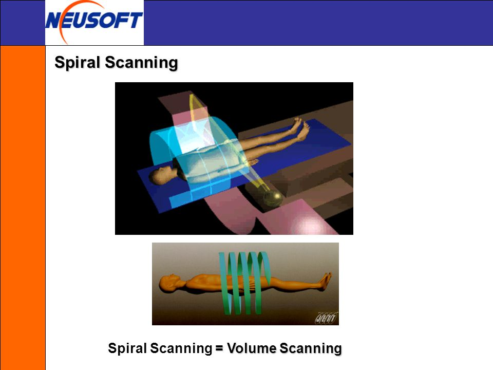 Spiral Scanning Spiral Scanning = Volume Scanning