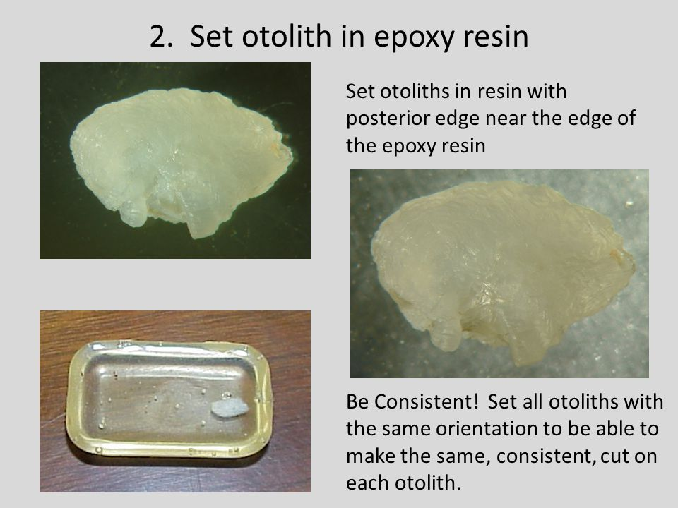 2. Set otolith in epoxy resin