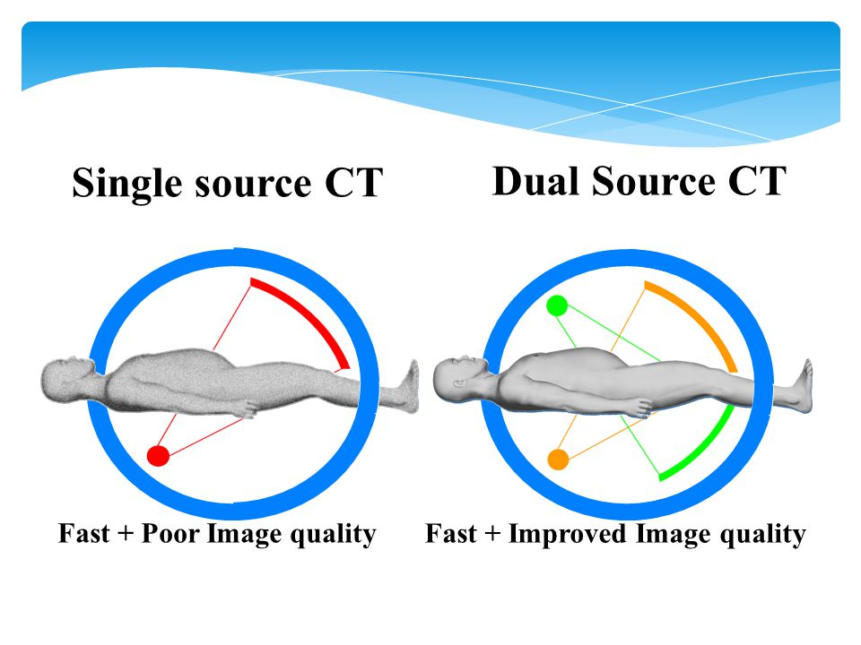 Single source CT Dual Source CT Fast + Poor Image quality