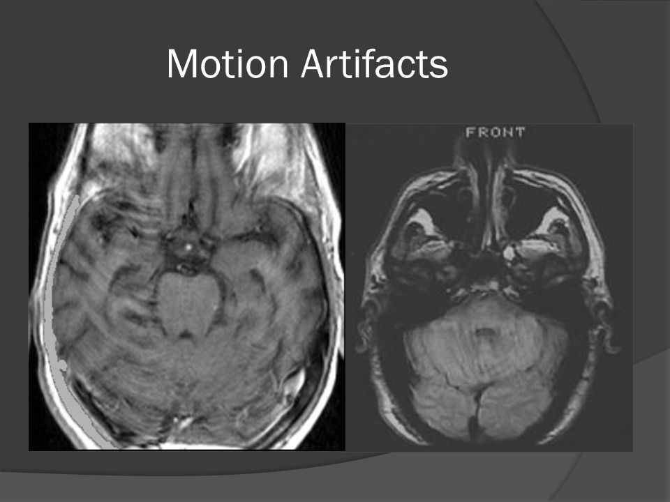 Motion Artifacts