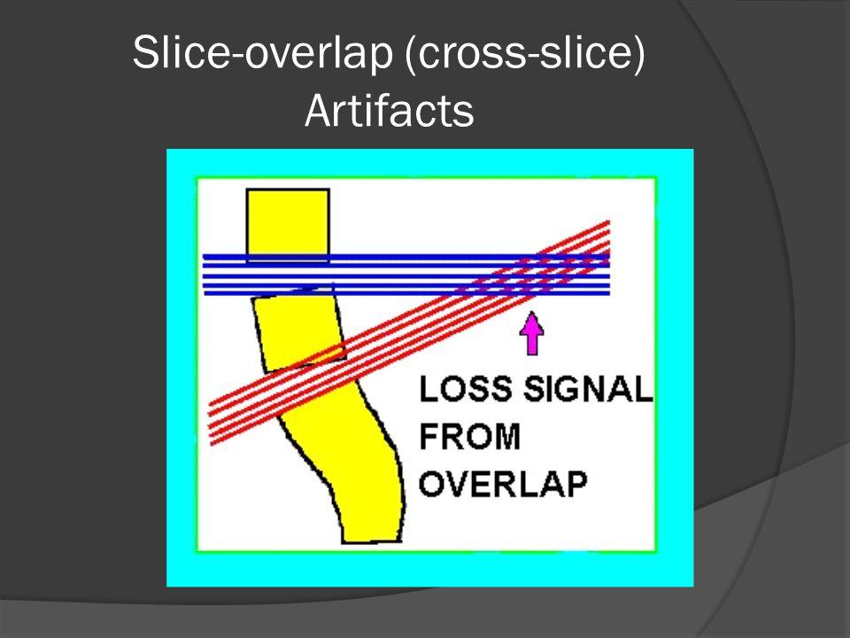 Slice-overlap (cross-slice) Artifacts