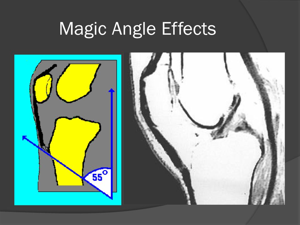 Magic Angle Effects