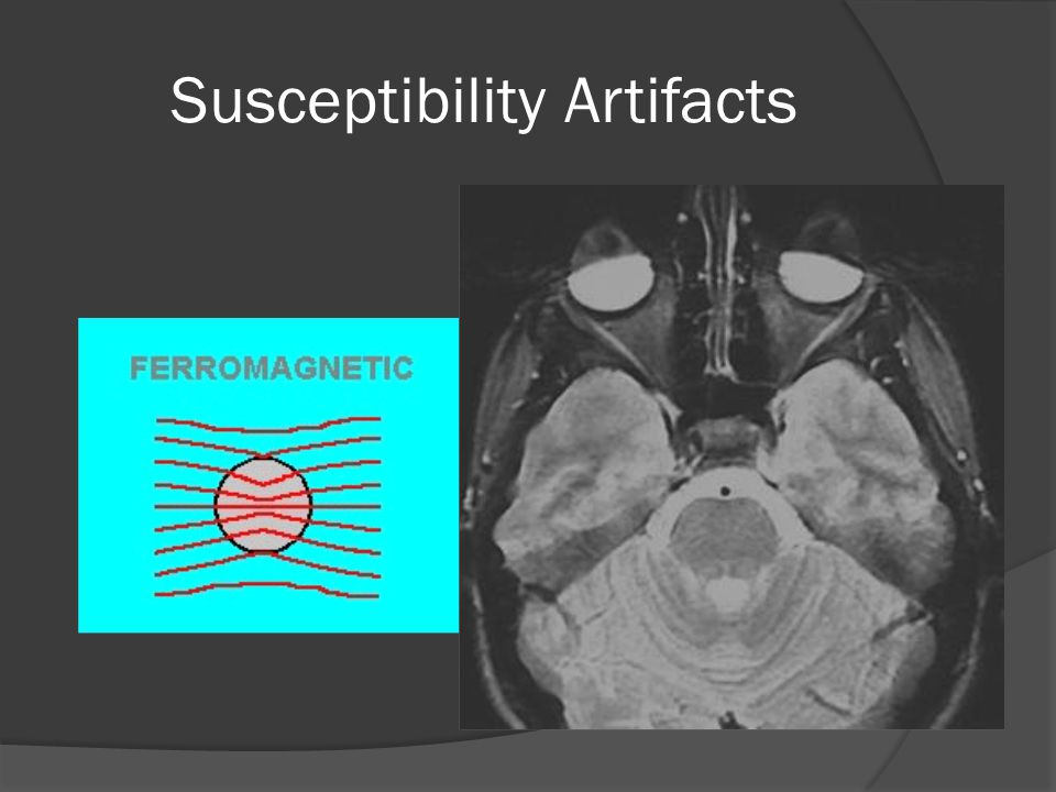Susceptibility Artifacts