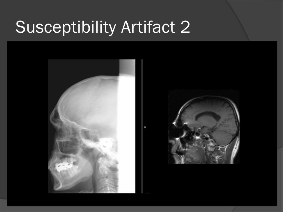 Susceptibility Artifact 2