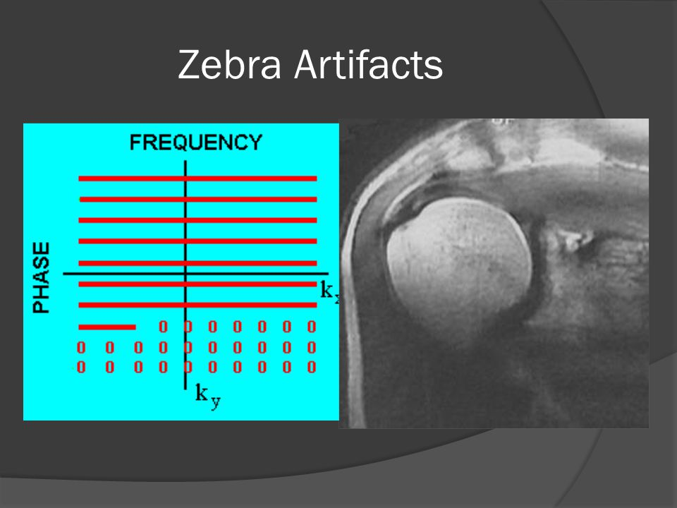 Zebra Artifacts