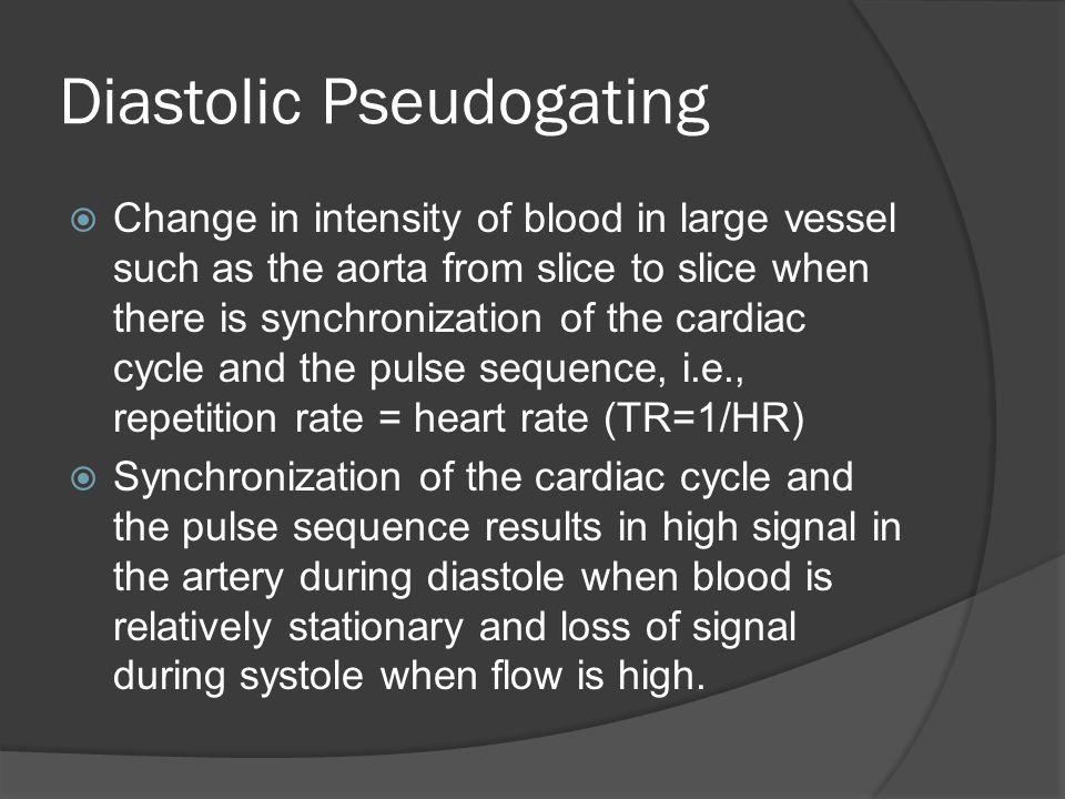 Diastolic Pseudogating