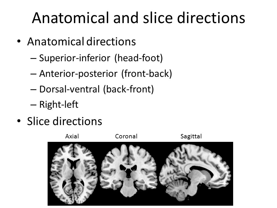 Anatomical and slice directions