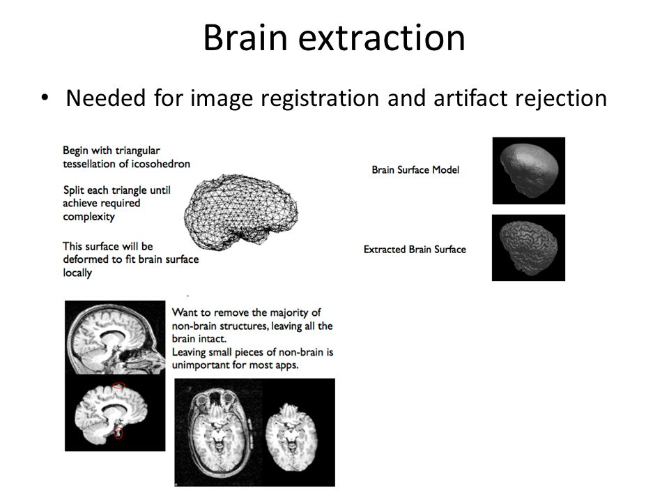 Brain extraction Needed for image registration and artifact rejection