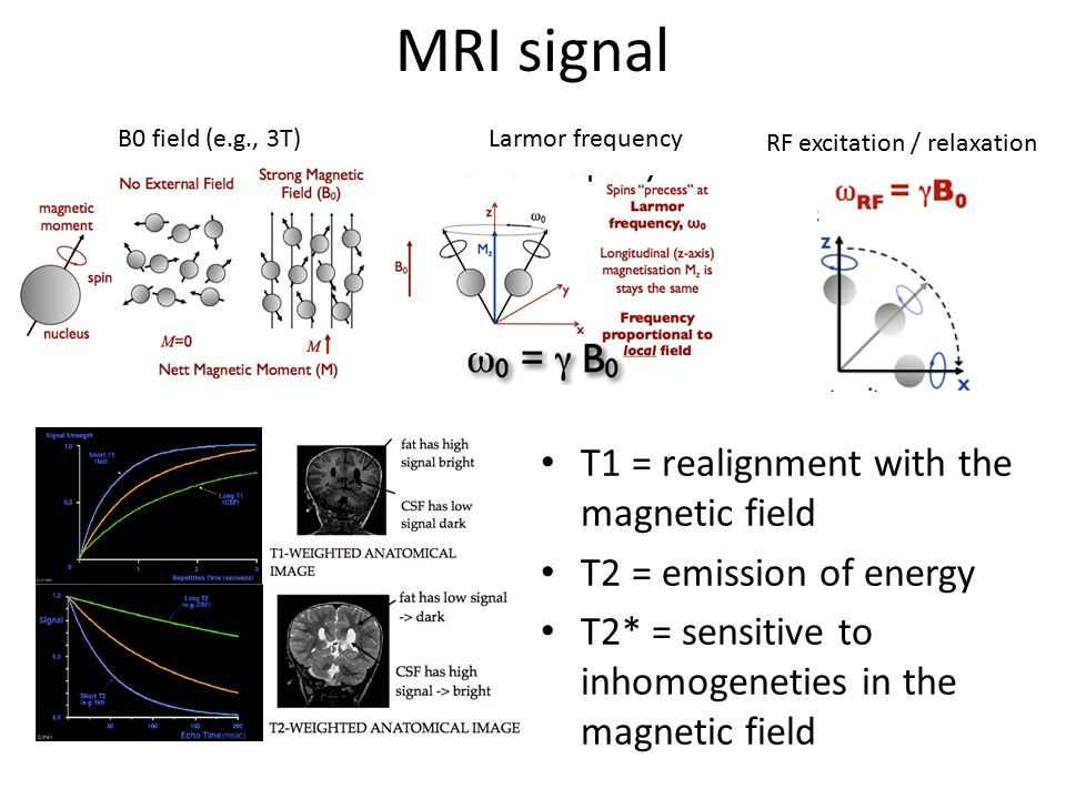 MRI signal T1 = realignment with the magnetic field
