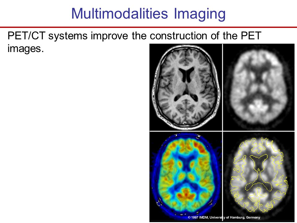 Multimodalities Imaging