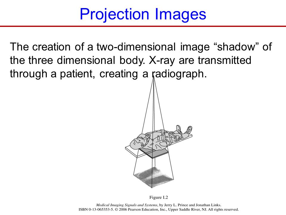 Projection Images