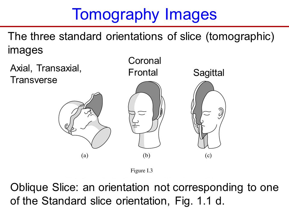 Tomography Images The three standard orientations of slice (tomographic) images. Coronal. Frontal.