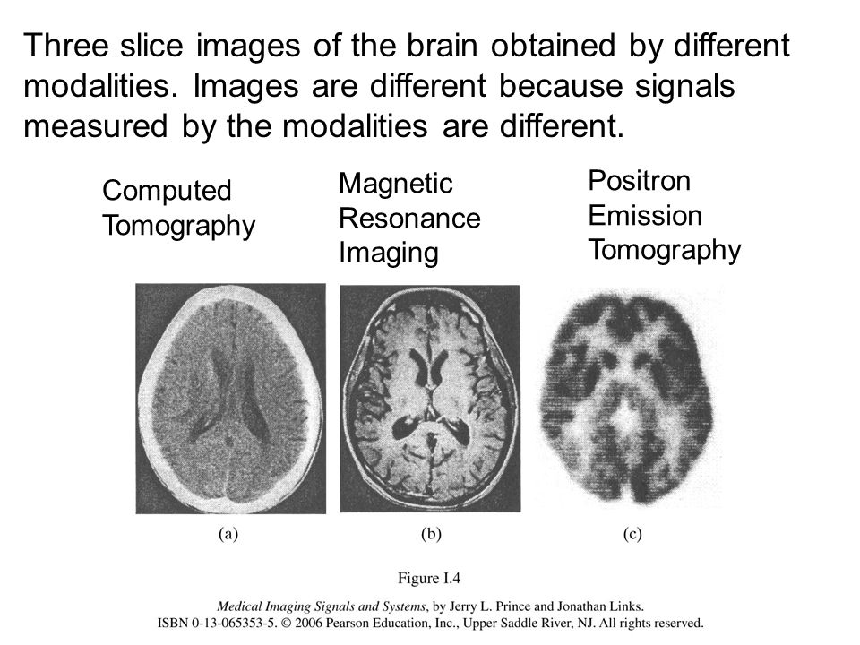 Three slice images of the brain obtained by different modalities