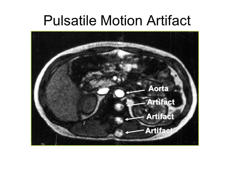 Pulsatile Motion Artifact