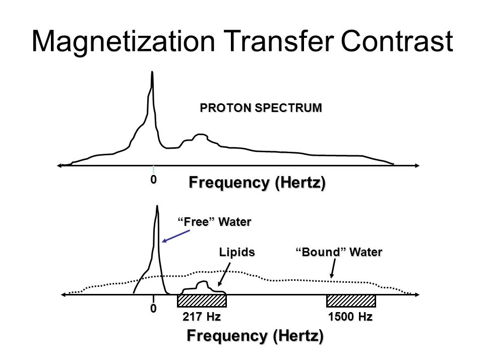 Magnetization Transfer Contrast