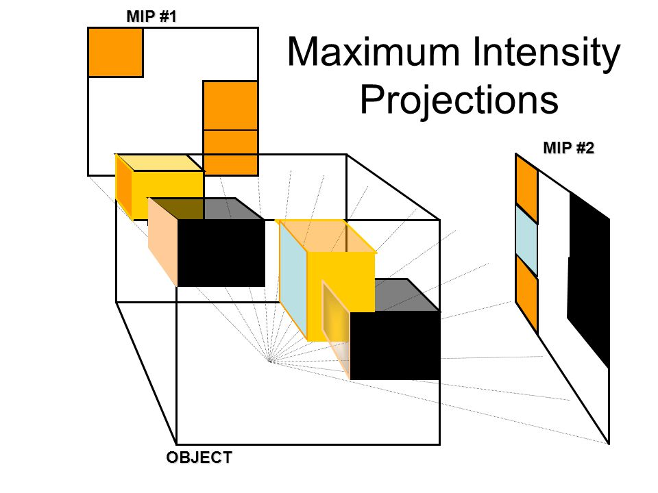 MIP #1 Maximum Intensity Projections MIP #2 OBJECT