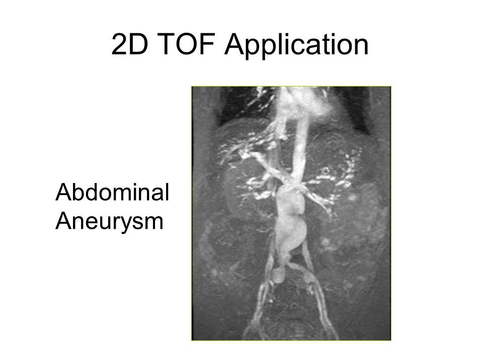 2D TOF Application Abdominal Aneurysm