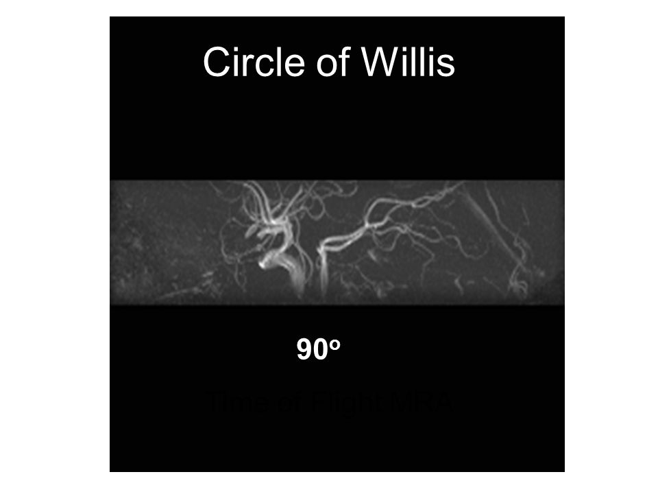 Circle of Willis 90o Time of Flight MRA