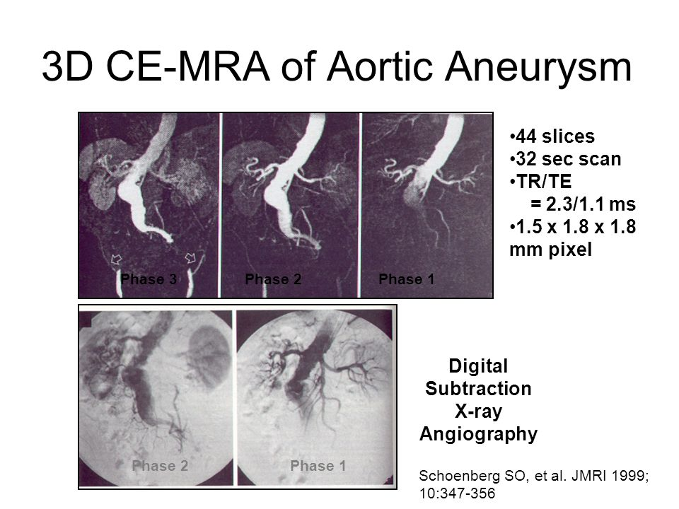 3D CE-MRA of Aortic Aneurysm