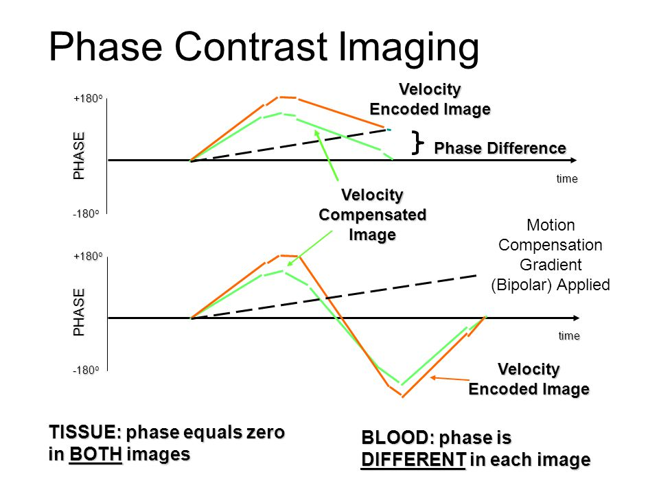 Phase Contrast Imaging