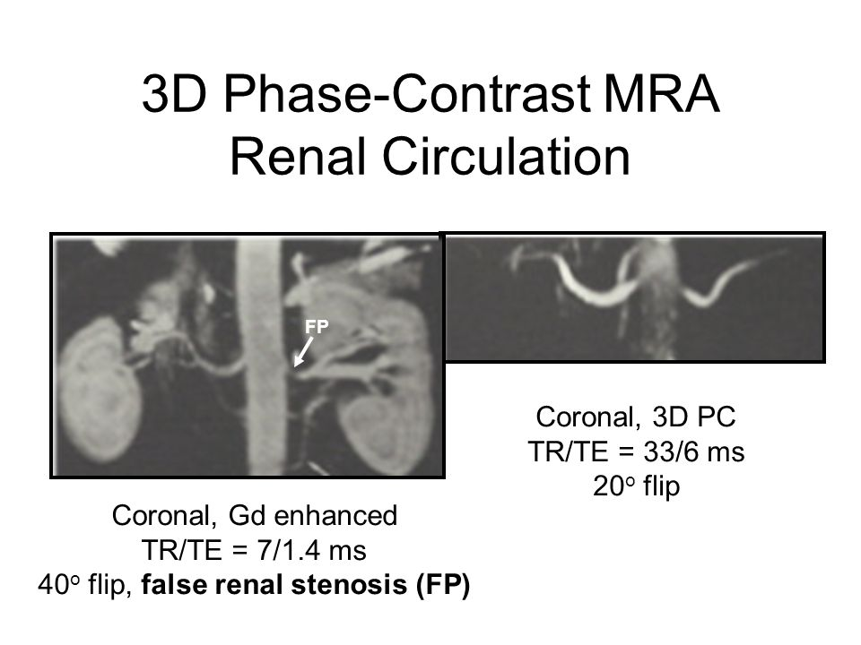 3D Phase-Contrast MRA Renal Circulation
