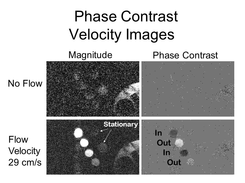 Phase Contrast Velocity Images