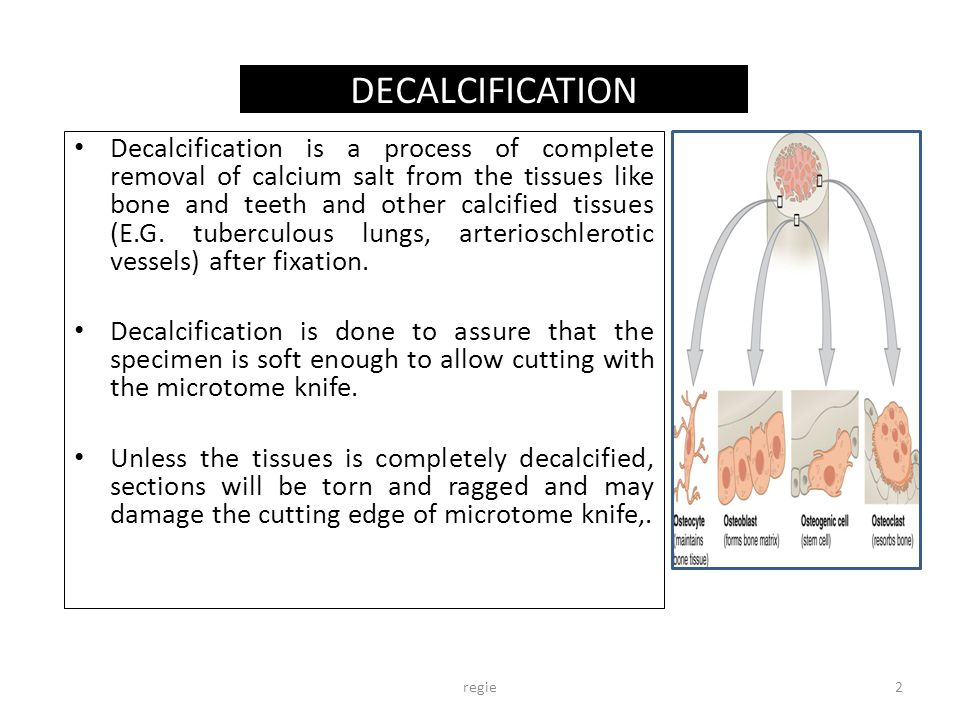 DECALCIFICATION