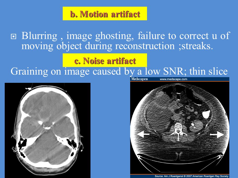 Graining on image caused by a low SNR; thin slice