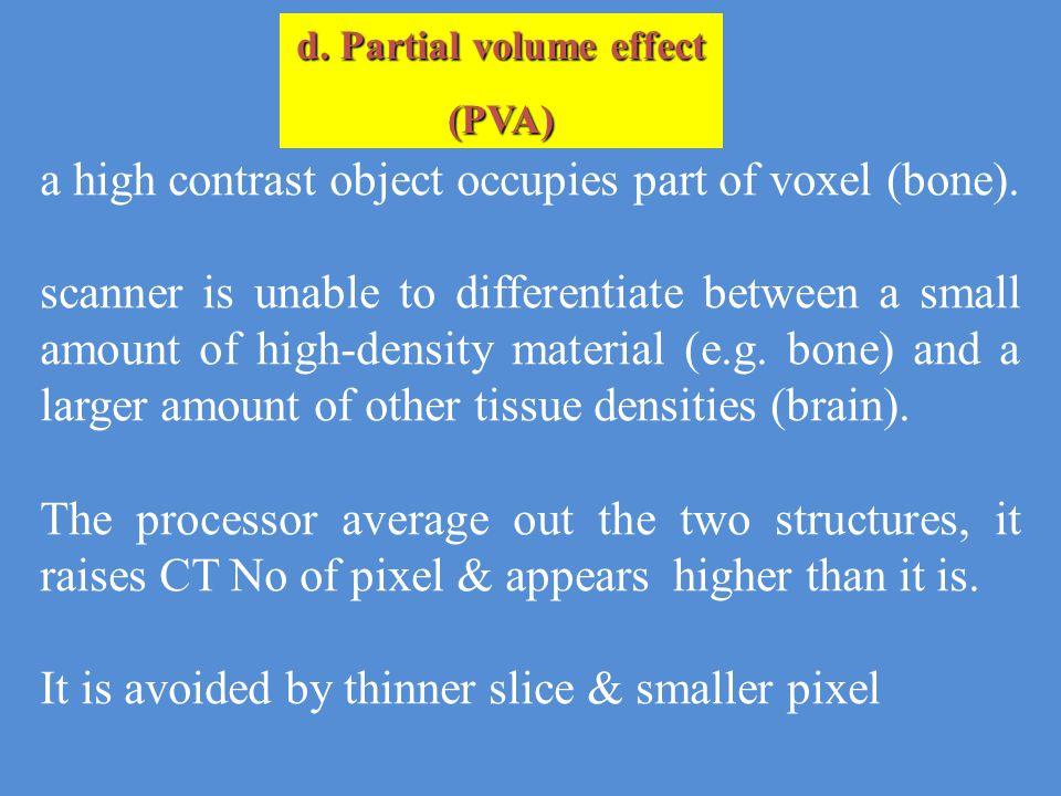 d. Partial volume effect