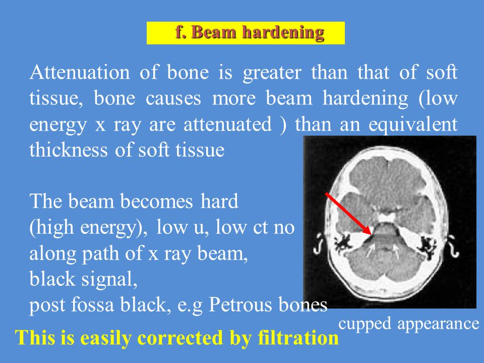 (high energy), low u, low ct no along path of x ray beam,