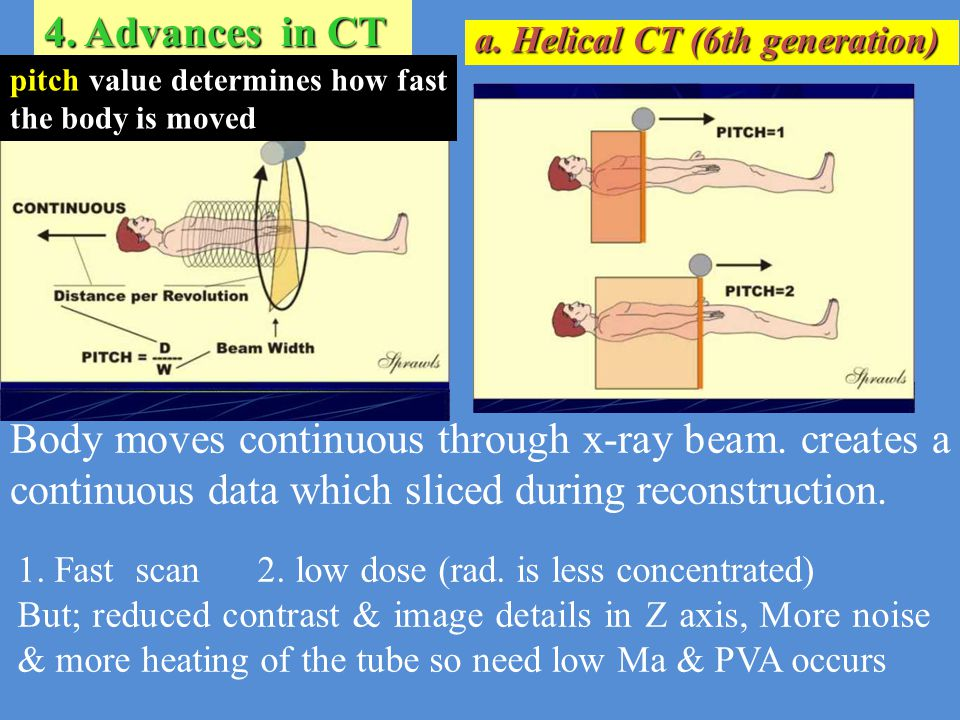 4. Advances in CT a. Helical CT (6th generation) pitch value determines how fast the body is moved.