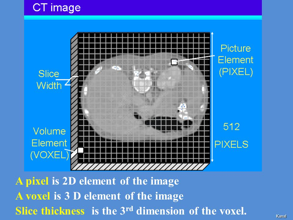 A pixel is 2D element of the image A voxel is 3 D element of the image