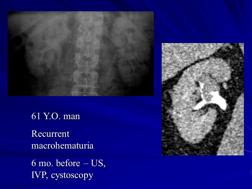 61 Y.O. man Recurrent macrohematuria 6 mo. before – US, IVP, cystoscopy
