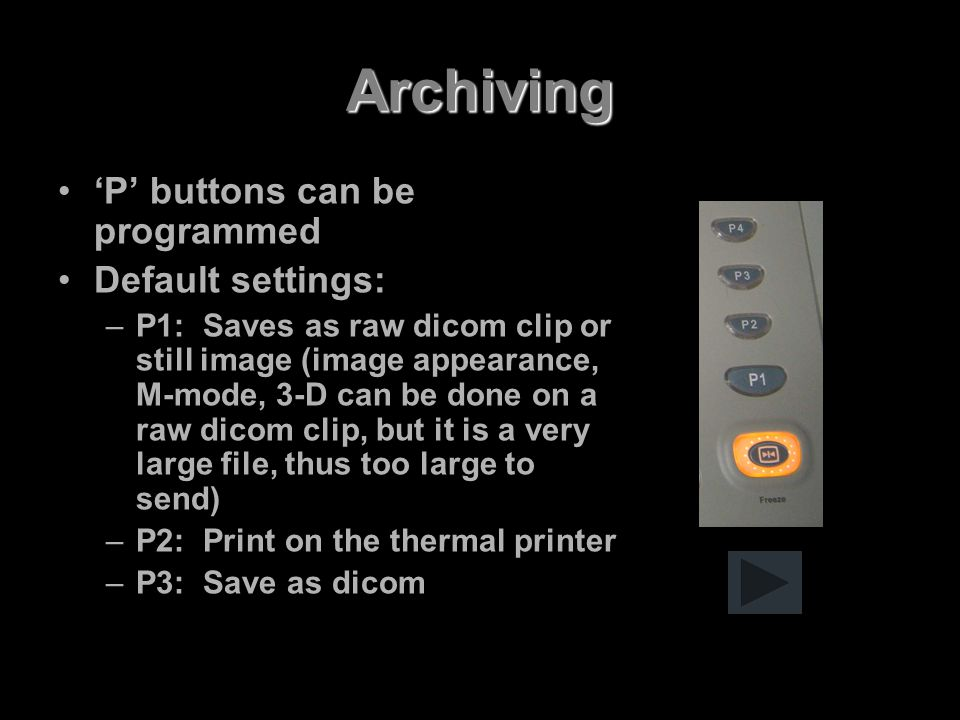 Archiving 'P' buttons can be programmed Default settings: