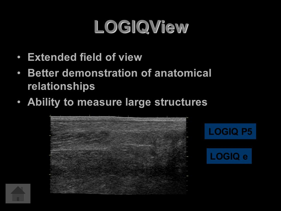 LOGIQView Extended field of view