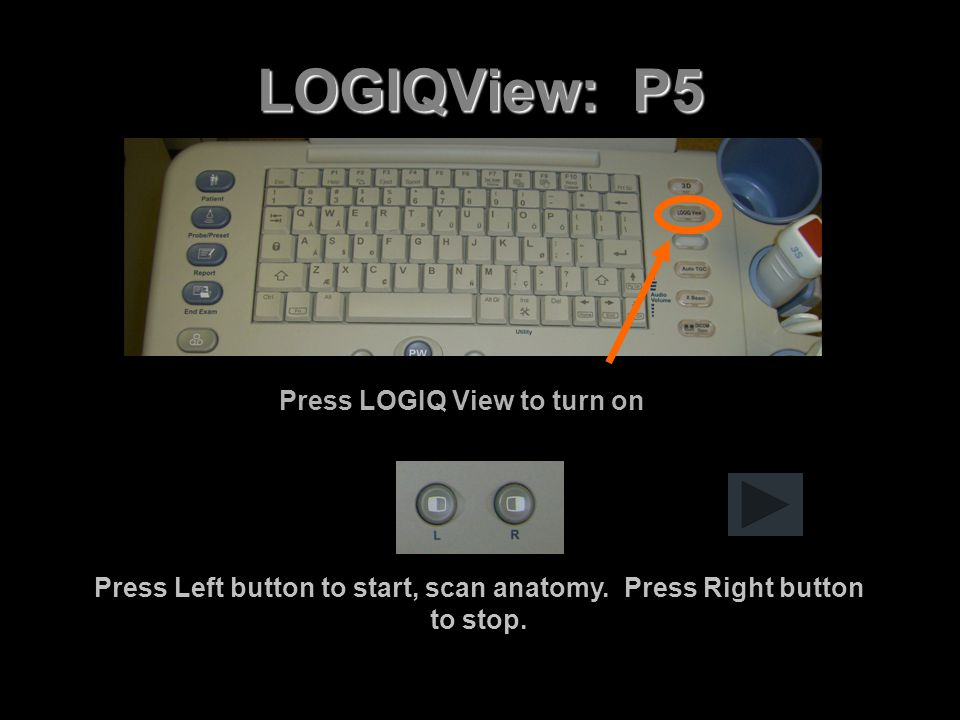 LOGIQView: P5 Press LOGIQ View to turn on