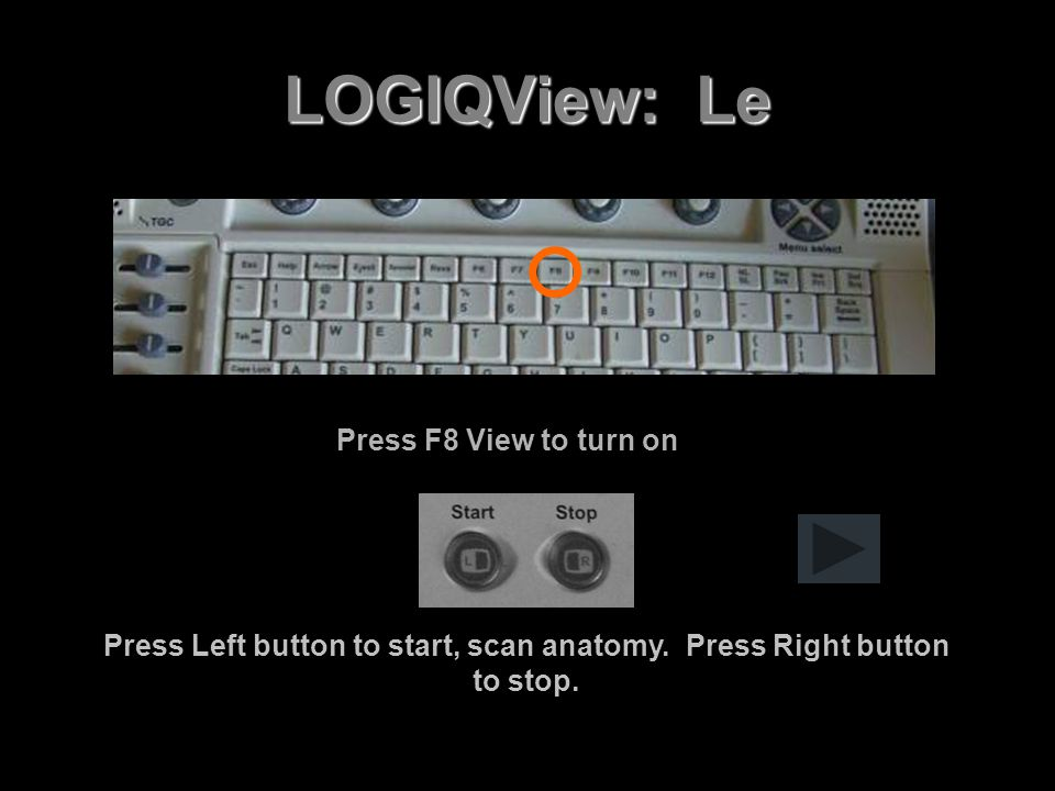 Press Left button to start, scan anatomy. Press Right button to stop.