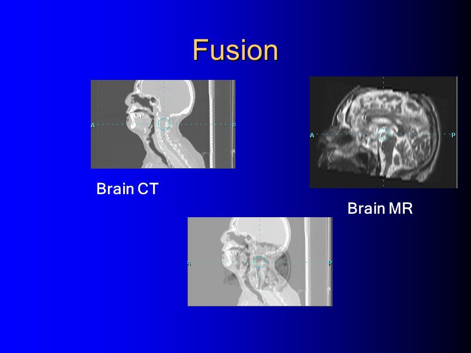 Fusion Brain CT Brain MR