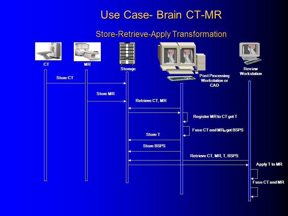 Use Case- Brain CT-MR Store-Retrieve-Apply Transformation