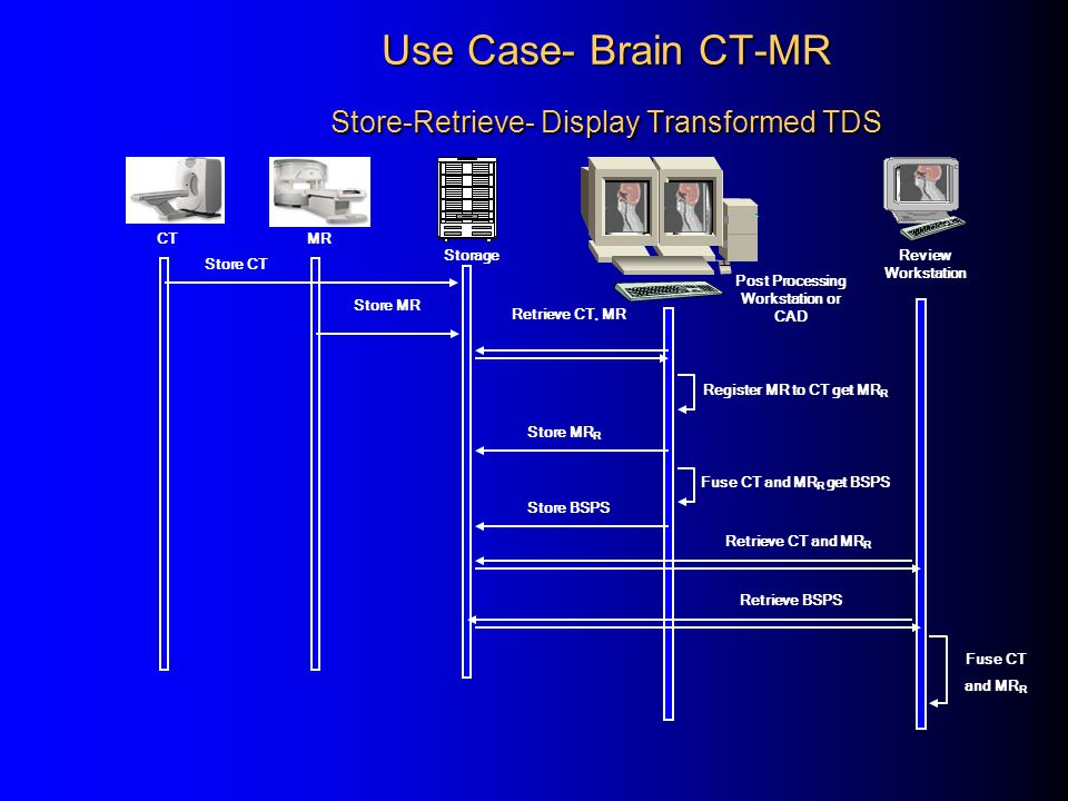 Use Case- Brain CT-MR Store-Retrieve- Display Transformed TDS