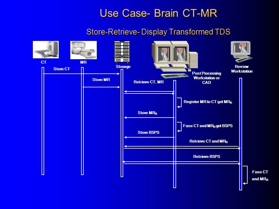 Use Case- Brain CT-MR Store-Retrieve- Display Transformed TDS