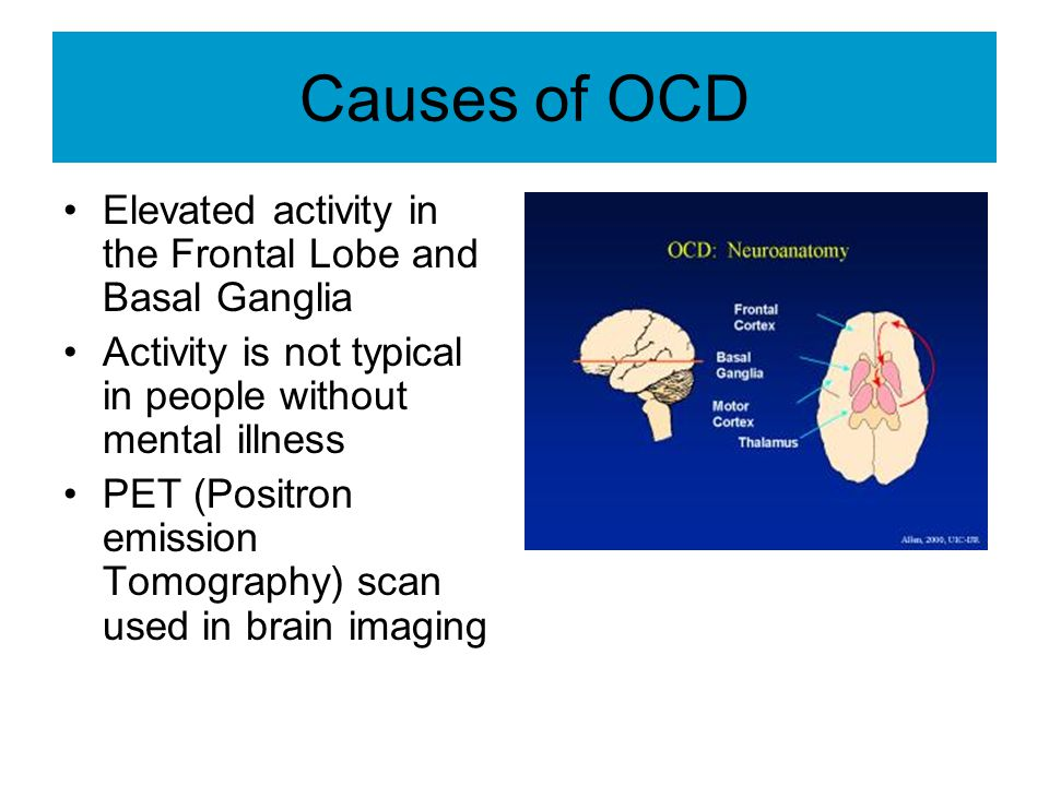 Causes of OCD Elevated activity in the Frontal Lobe and Basal Ganglia
