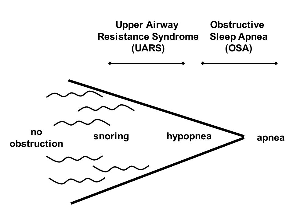 Upper Airway Resistance Syndrome. (UARS) Obstructive. Sleep Apnea. (OSA) no. obstruction. snoring.