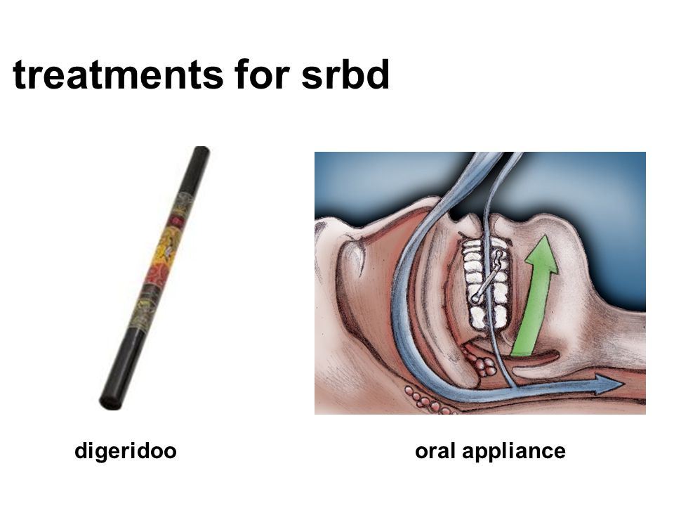 treatments for srbd digeridoo oral appliance