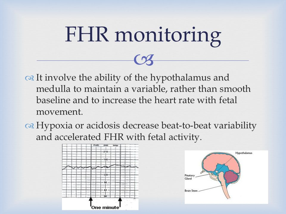 FHR monitoring