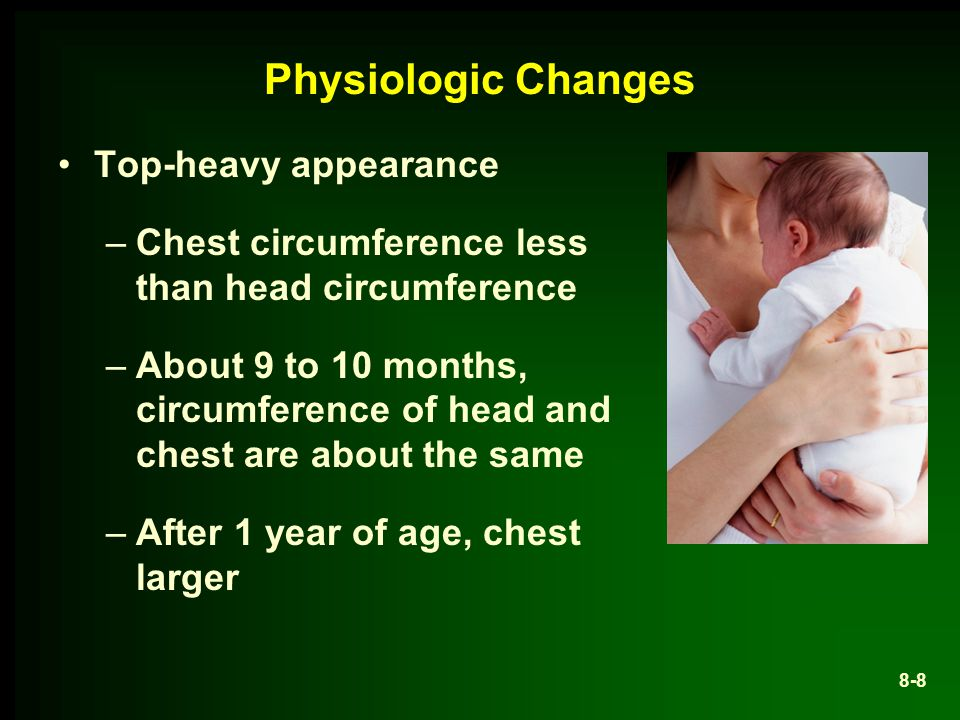 Physiologic Changes Top-heavy appearance
