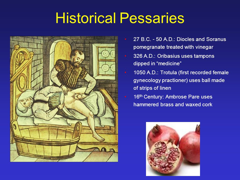 Historical Pessaries 27 B.C. - 50 A.D.: Diocles and Soranus pomegranate treated with vinegar. 326 A.D.: Oribasius uses tampons dipped in medicine