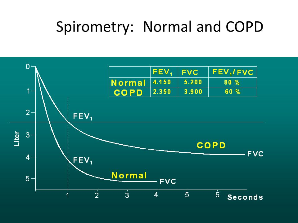 Spirometry: Normal and COPD